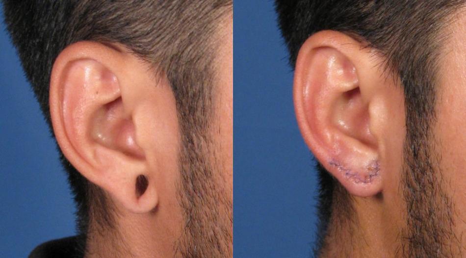 Зашить дырки от тоннелей в ушах